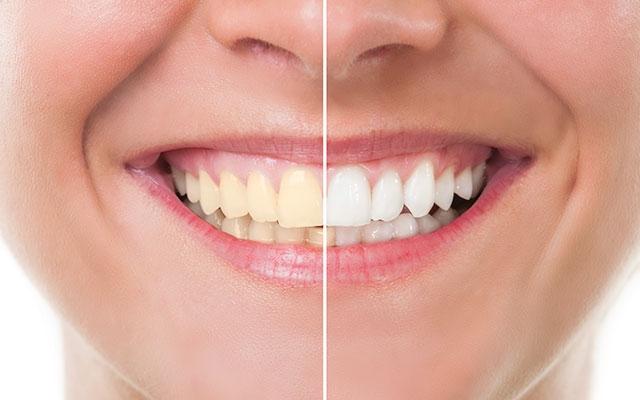 tandblegning vejle