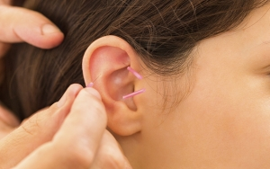 Slip sukkertrangen med øreakupunktur