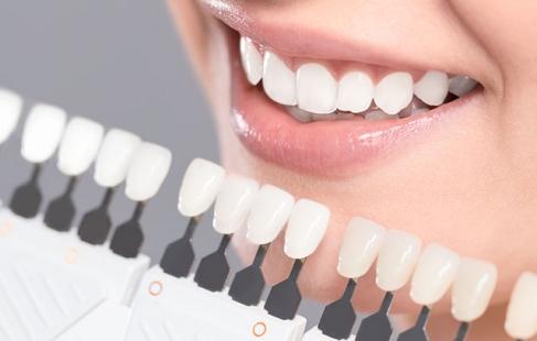 Flotte, hvide tænder